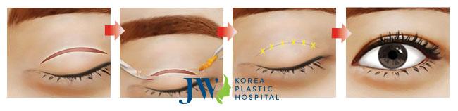 Mô phỏng quá trình thực hiện của phương pháp cắt mí