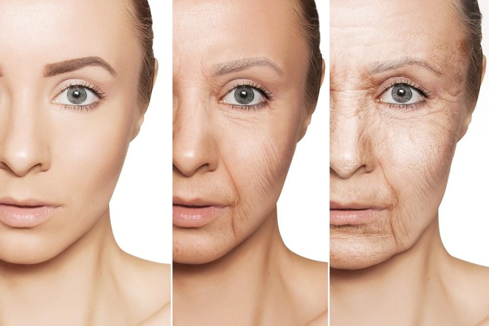 Ngăn ngừa lão hóa da khi bước sang tuổi trung niên