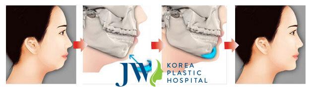 Hình ảnh mô phỏng phẫu thuật độn cằm