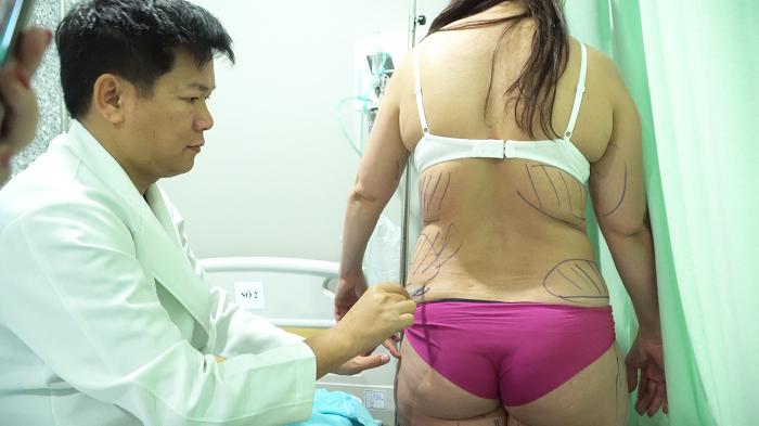 Bác sĩ đo vẽ và xác định vùng hút mỡ