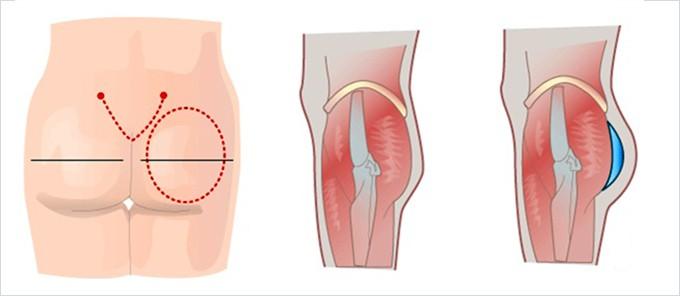 Phẫu thuật nâng mông sử dụng túi độn