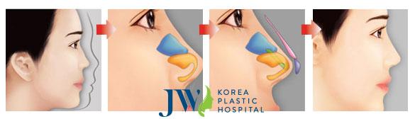 Mô tả quá trình nâng mũi