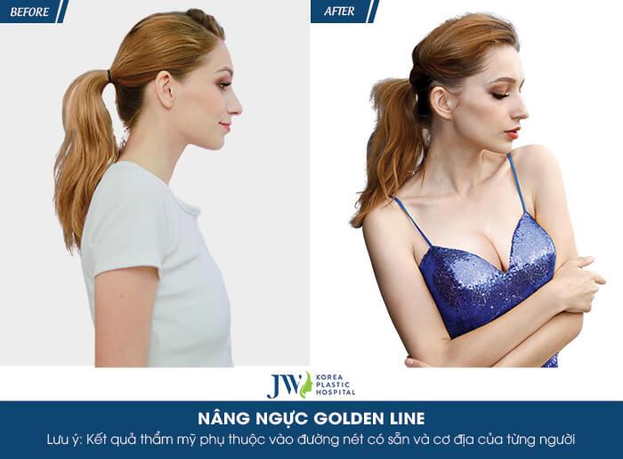 Sự thay đổi khi sử dụng công nghệ nâng ngực