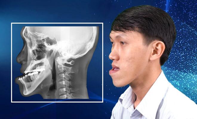 Khớp cắn bị lệch do hàm dưới quá phát triển