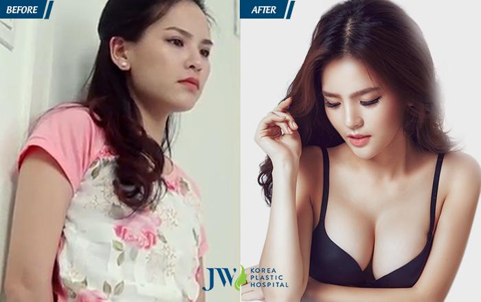 Hình ảnh thay đổi sau khi nâng ngực
